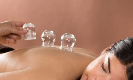 Cupping for Weight Loss – What You Need to Know