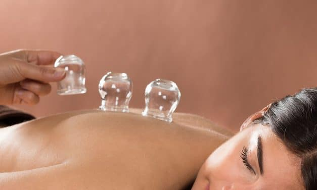 Cupping for Weight Loss – Everything You Need to Know